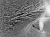 Hypnoses-Ericksonienne Séance